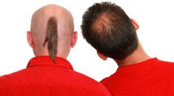 Hair Replacement Singapore | 2 kinds of hair loss | Hair Spec