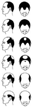 Hair loss   Hair Replacement   Hair Spec
